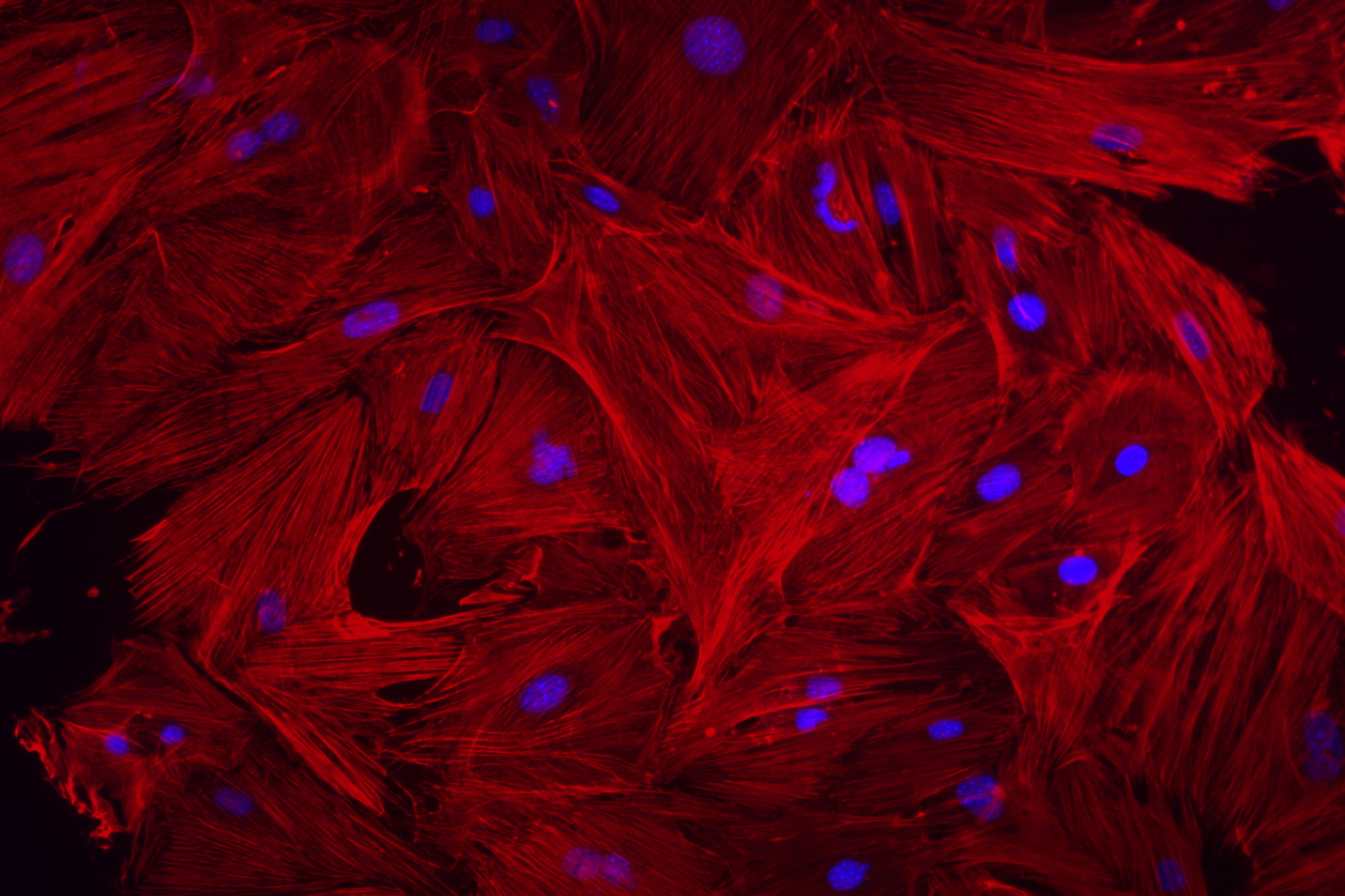 Mouse heart fibroblasts