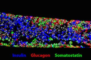 Doctors Close to Implanting First Stem-Cell Therapy for Diabetes