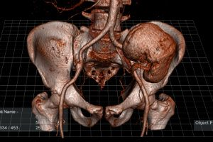 EchoPixel's Virtual Anatomy Models FDA-Cleared for Diagnosis, Surgical Planning