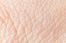 Stratatech Starts Latest Study of Skin-Like Tissue in Burn Patients