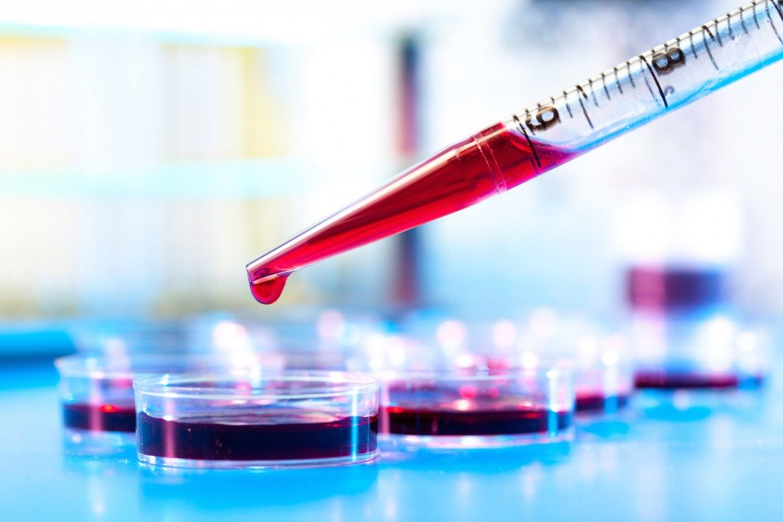 Tackling Sickle Cell, Global Blood Therapeutics Joins IPO Queue