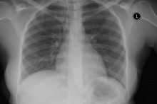 Veracyte Names New CMO As It Builds Out Lung Diagnostic Business