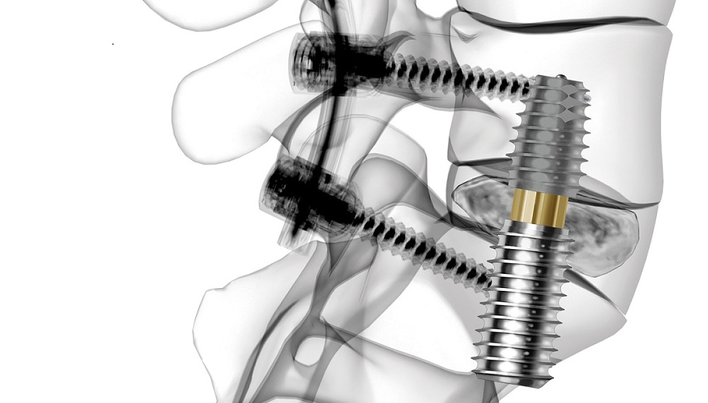 Salvaged From Bankruptcy, TranS1 Medical Device Finds New Life