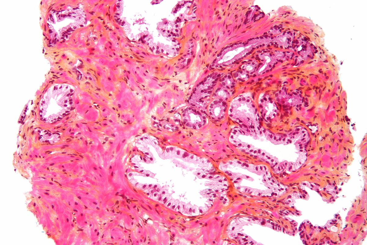 Micrograph of prostate biopsy shows cancer in upper right (Courtesy Wiki creative commons, image by Nephron)