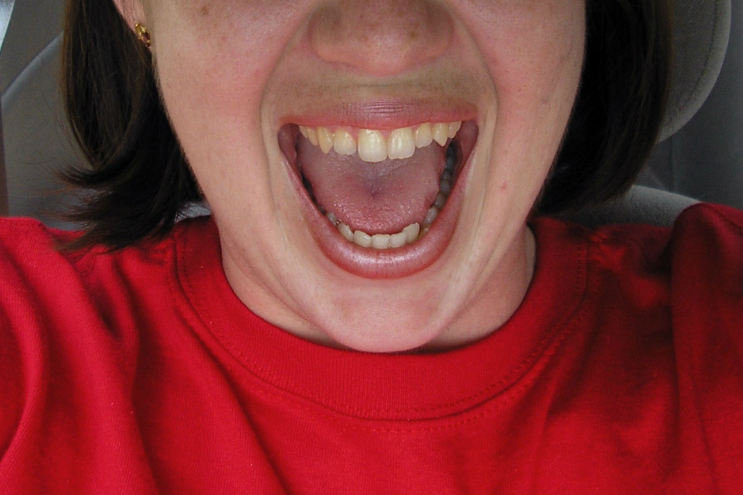 """""""Judy Mouth Open"""" by Jason Nelms Creative Commons"""