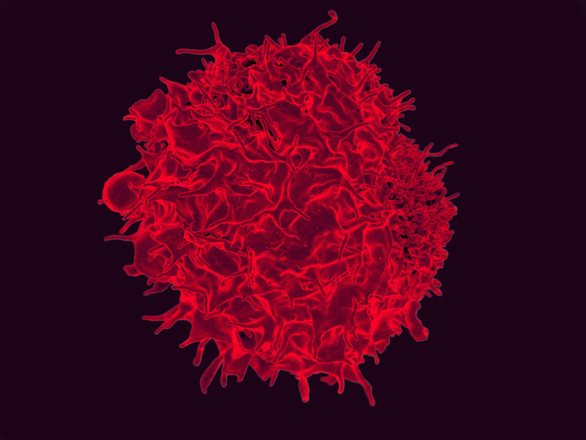 "ArsenalBio Launches With $85M for ""Programmable"" T Cell Therapies"