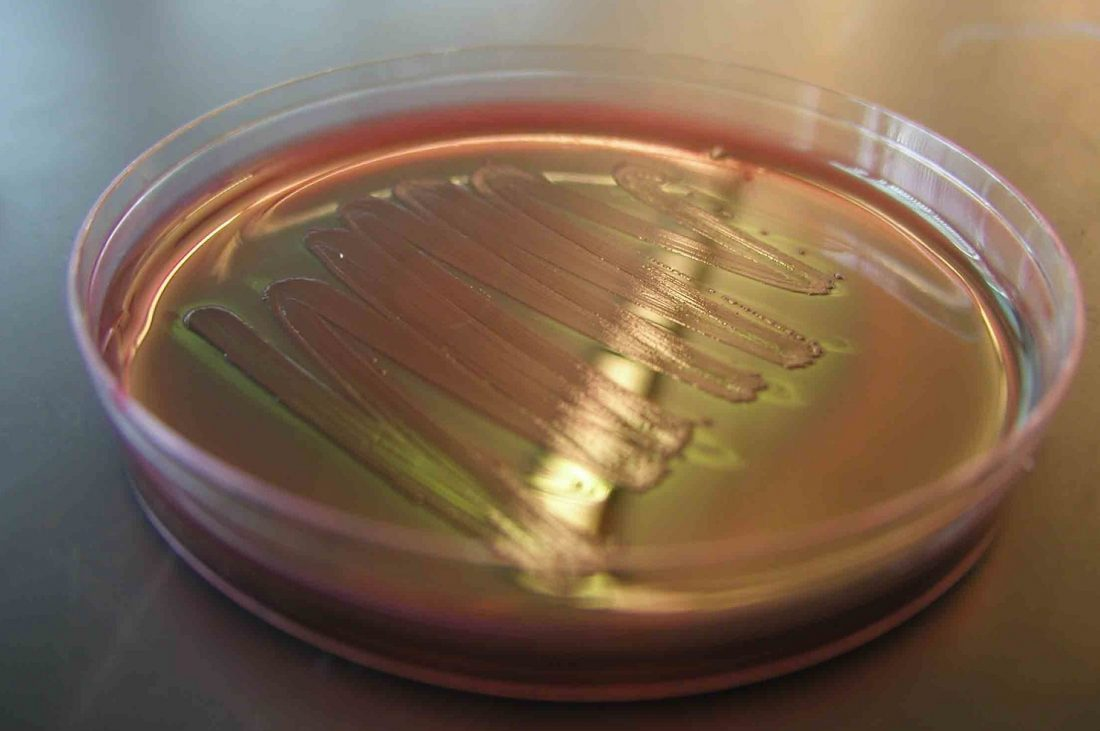 "Forge Therapeutics Gets up to $11.1M to Advance ""Superbug"" Drugs"