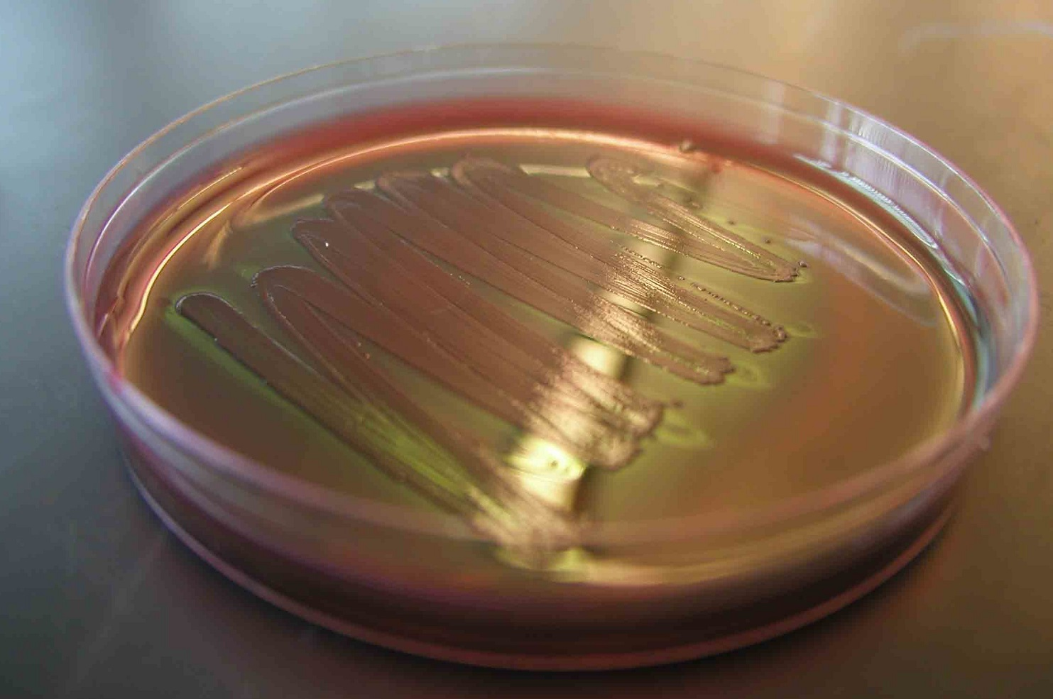 E. coli in petri dish