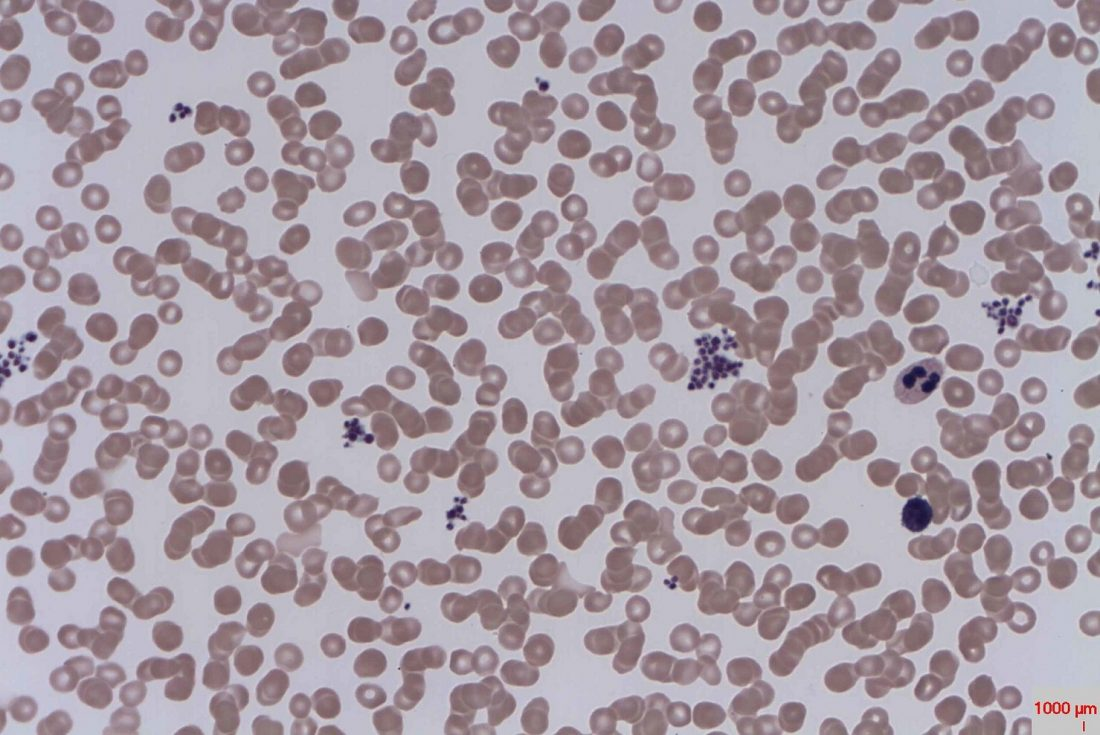Harvard Biotech Spinout Lands $10M to Make Platelets From Stem Cells
