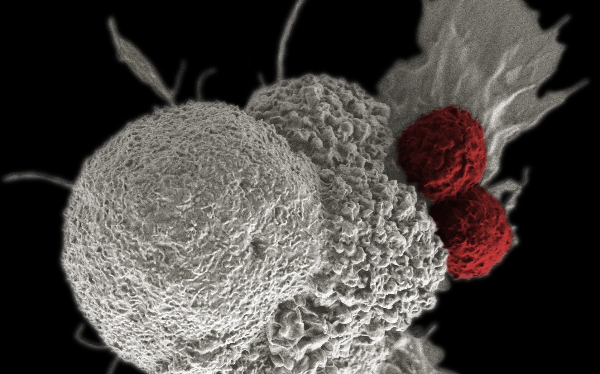 NCI T cell attack cancer