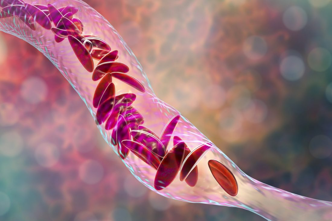 Forma Therapeutics Eyes IPO to Advance Sickle Cell, Prostate Cancer Drugs