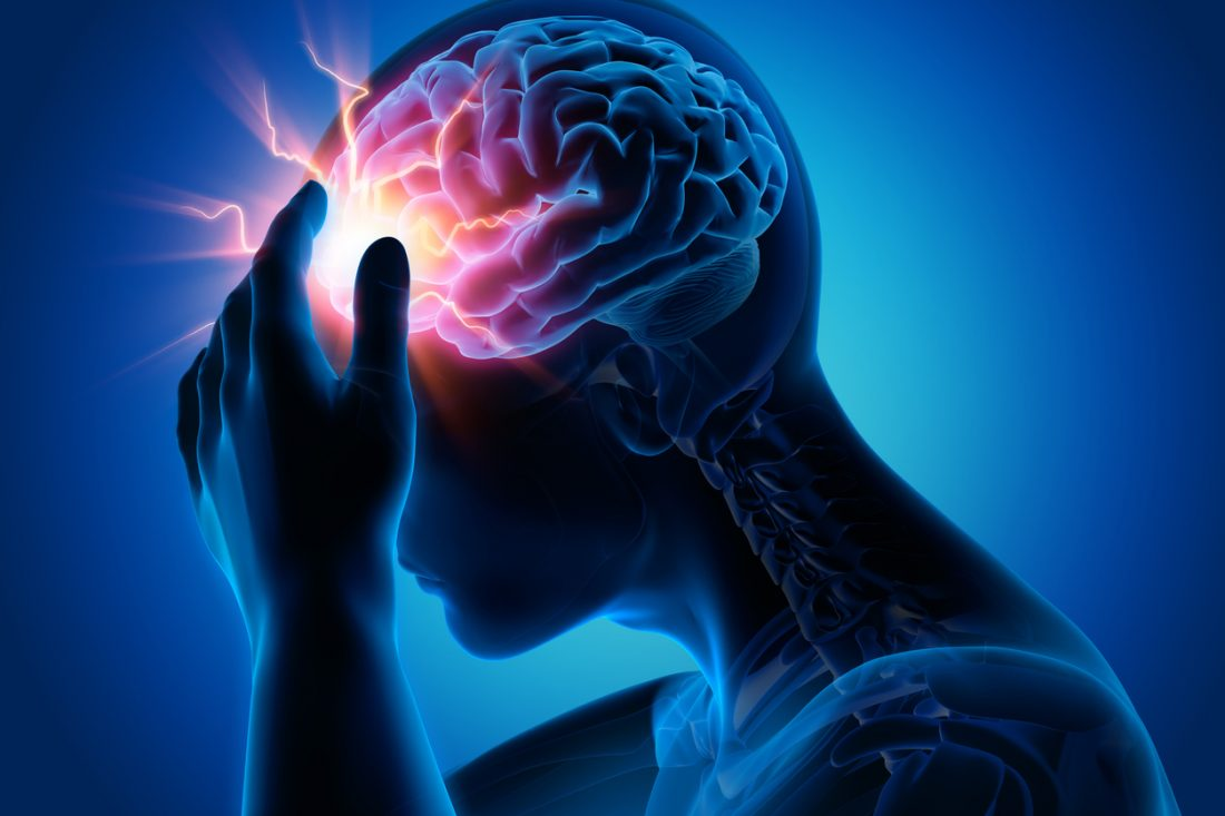 Satsuma Pharma's Migraine Drug Fails to Beat Placebo in Phase 3 Test